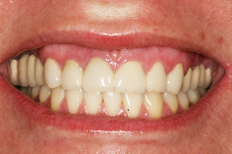 68 best images about dental rehabilitation of our patient s unaesthetic
