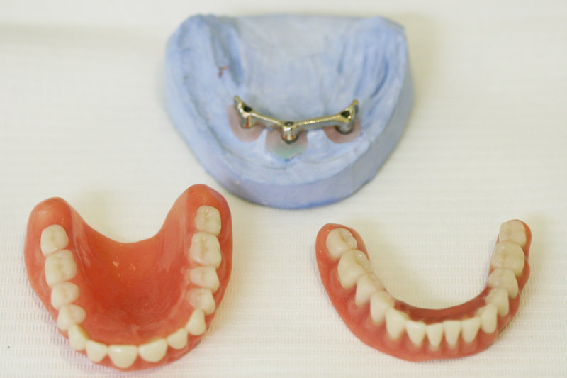 Solving The Complete Upper And Lower Toothlessness If Little Bone